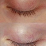 Bare Lashes Before and After